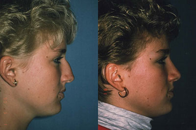NOSE |Rhinoplasty| Before and After treatment