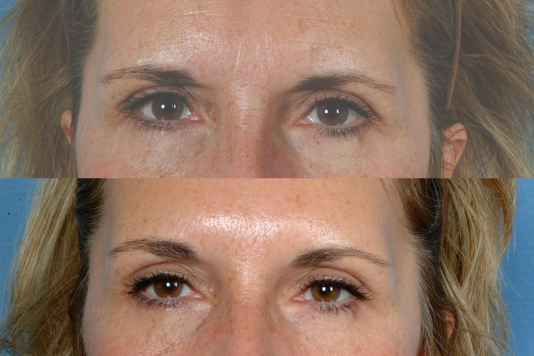 EYES: Botox Cosmetic - Photo Before and After Treatment Woman (frontal view)