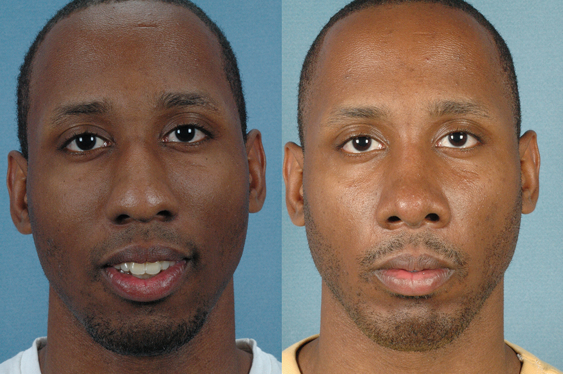 LOWER FACE - Chin implant with septorhinoplasty - Male before and after photos (frontal view)