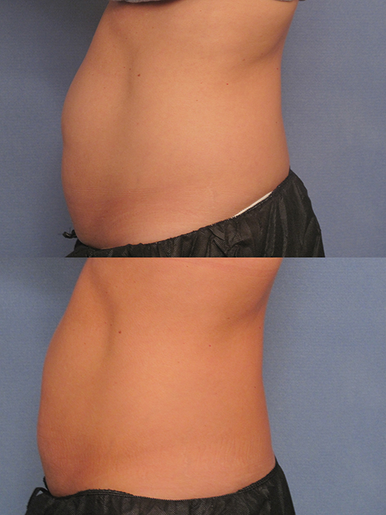 before and after CoolSculpting procedures - images