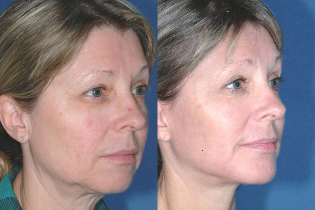 LOWER FACE - Facelift - Before and After 6 mounth - Photos: Female patient (right side, oblique view)