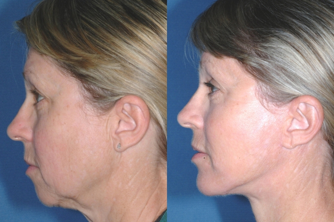 LOWER FACE - Facelift - Before and After 6 mounth - Photos: Female patient (left side view)