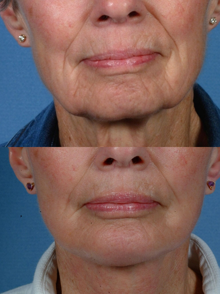 Gallery: Jaw and necklift (facelift) with chin implant