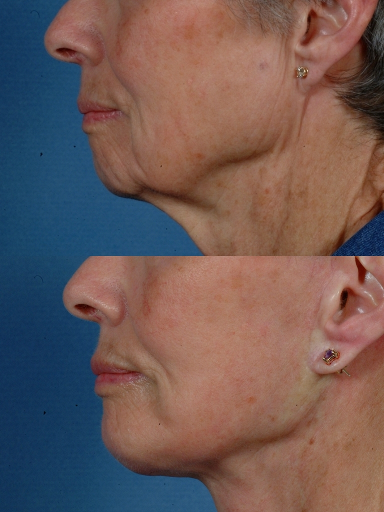 LOWER FACE - Jaw and necklift (facelift) with chin implant - Before and After Photos: Female (Left side view)