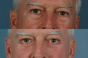 Gallery: Eyes - Before and After