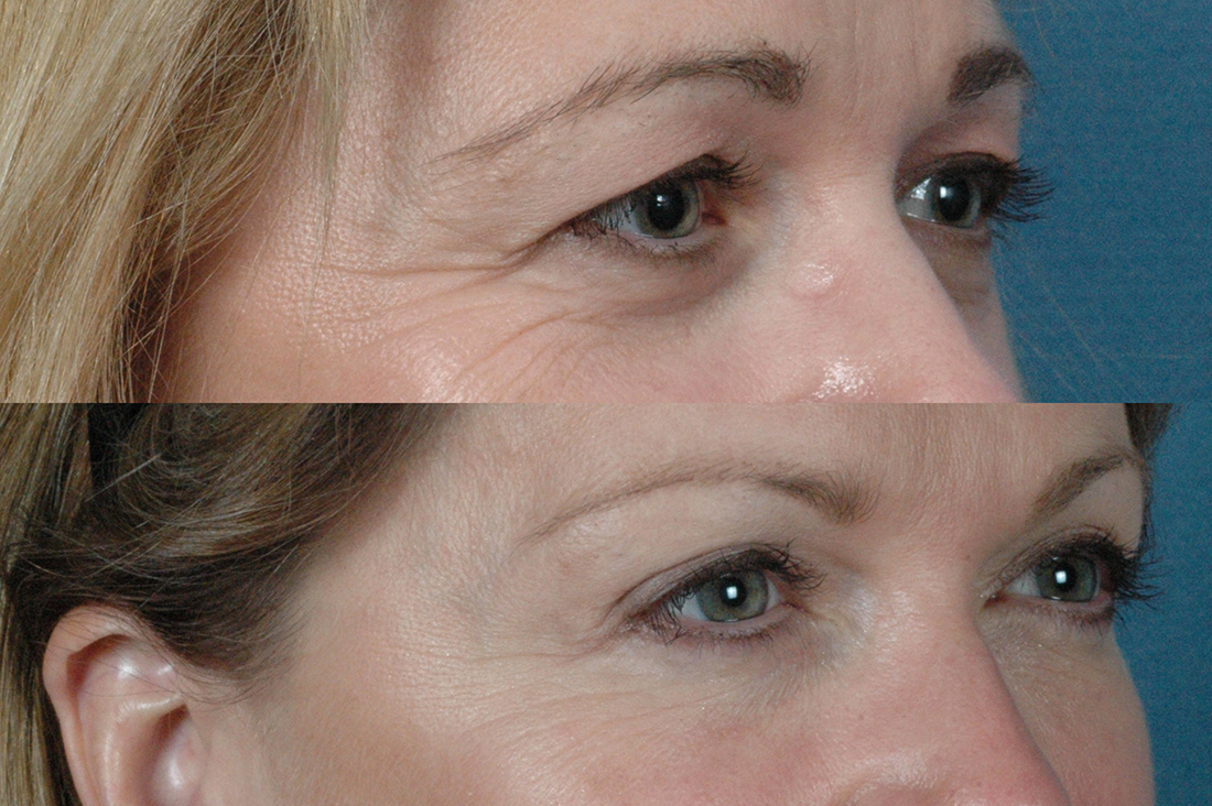 Eyes - Upper and Lower Blepharoplasty - Before and After Photos: Female (right side, oblique view)