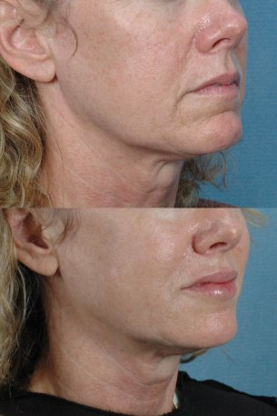 Featured Gallery: Non-Surgical Facial Rejuvenatio|Before and After Photos| Female patient (right side, oblique view)