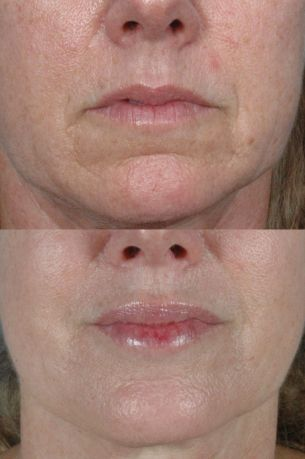 Featured Gallery: Non-Surgical Facial Rejuvenatio|Before and After Photos| Female patient (frontal view)