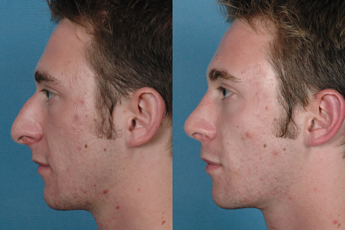 Before and After Photos: Nose - Male (left side view)