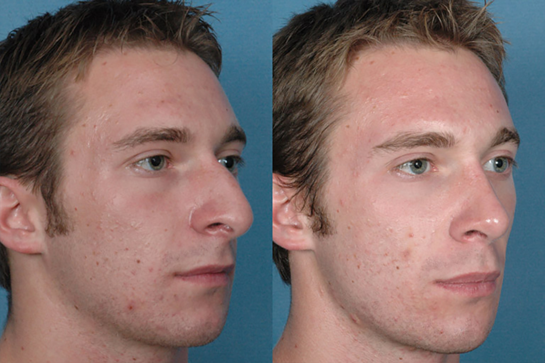 Before and After Photos: Nose - Male (right side view)