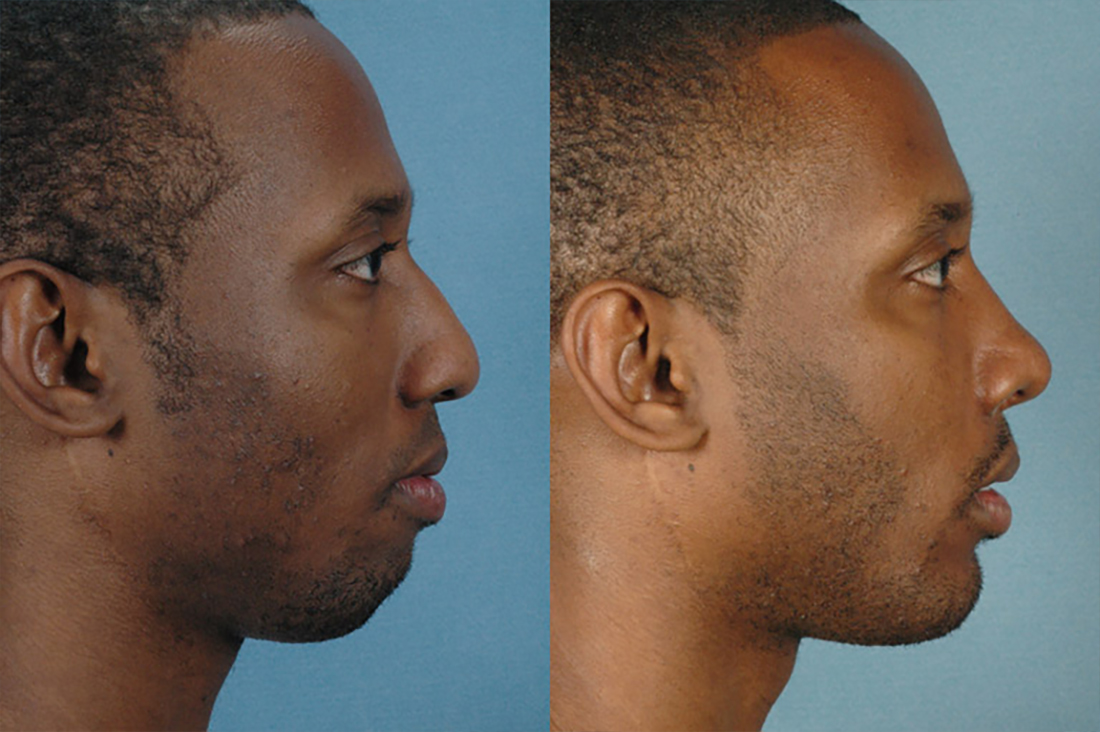 Gallery: Nose - Septorhinoplasty - Before and After Treatment Photos: Men (right side view)