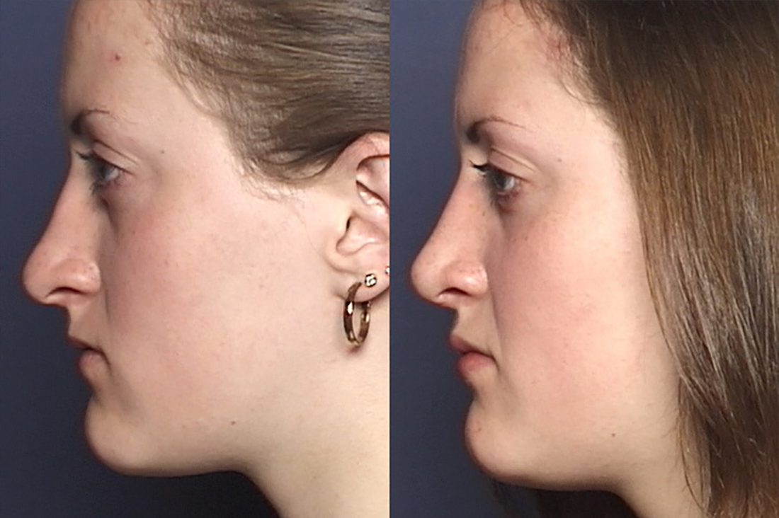 NOSE |Septorhinoplasty| Before and After treatment - Photo: Female patient (left side view)