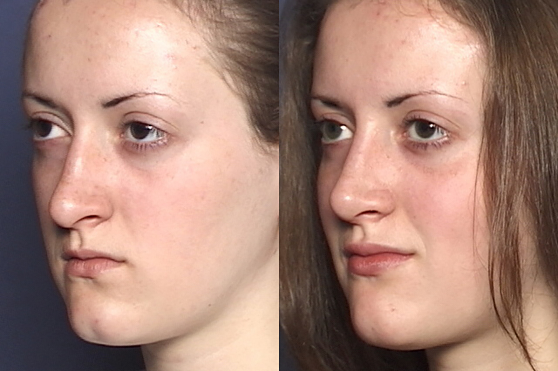 NOSE |Septorhinoplasty| Before and After treatment - Photo: Female patient (left side, oblique view)