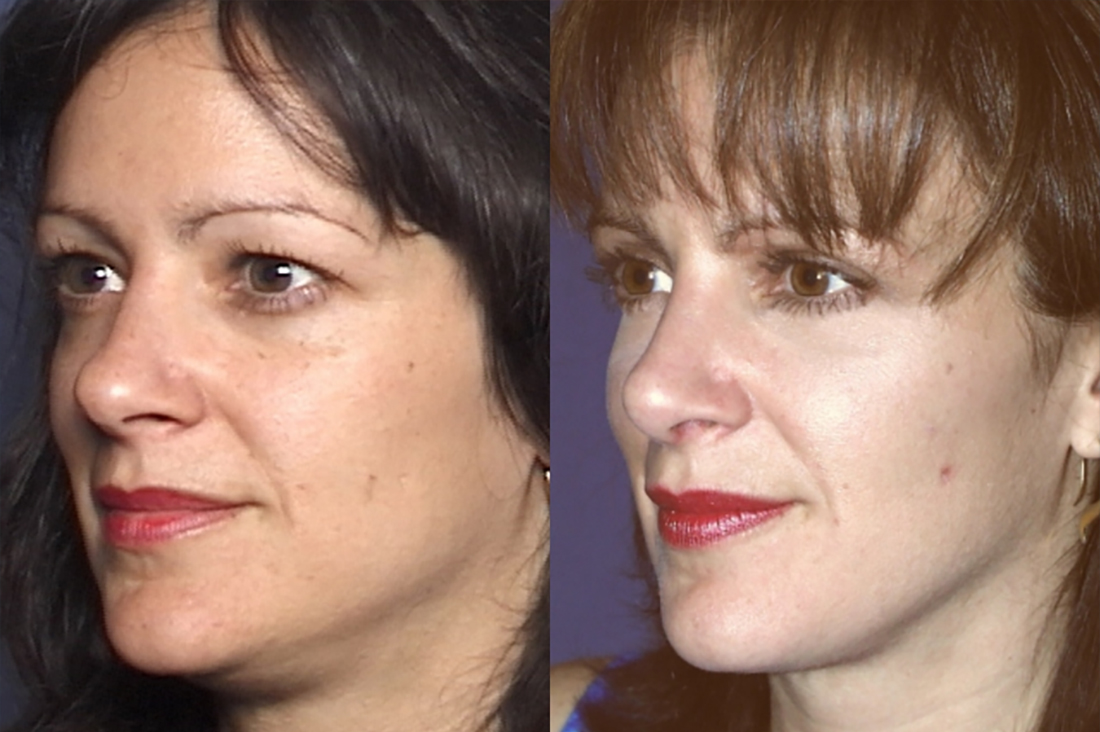 GALLERY Lower Face: Liposculpture - Before and After Treatment Photos - Female patient (right side, oblique view)