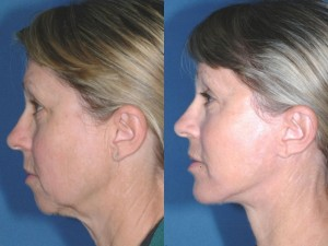 pics female patient before and after Chin Implants - side view