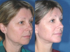 pics female patient before and after Chin Implants