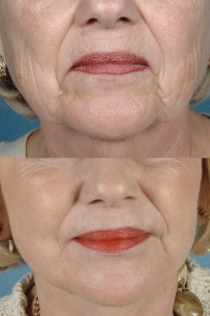 Featured Gallery: Full Face Surgical Rejuvenation|Before and After Photos| Female patient (frontal view)