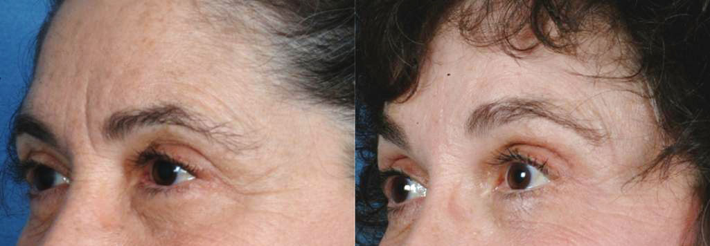 EYES: Botox Cosmetic - Photo Before and After Treatment Woman