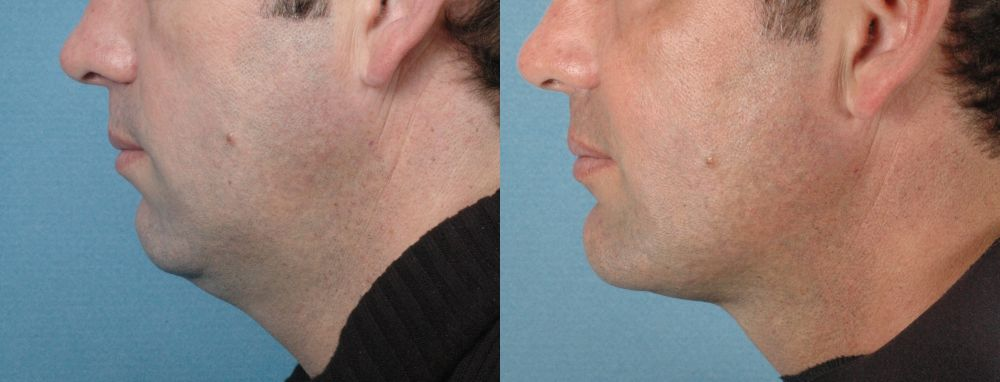 LOWER FACE - Chin Implant - Before and After Photos: Male (left side view)