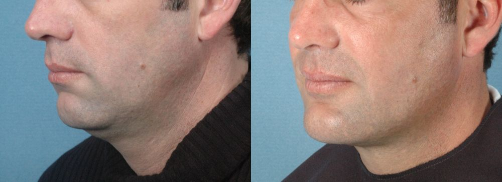 LOWER FACE - Chin Implant - Before and After Photos: Male (left side, oblique view)