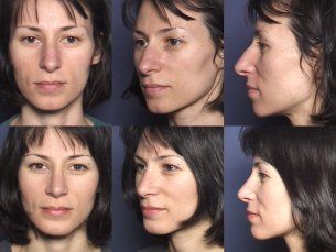 LOWER FACE: Chin implant with rhinoplasty - Before and After Photos: Female