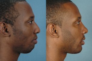 LOWER FACE - Chin implant with septorhinoplasty - Male before and after photos (right side view)