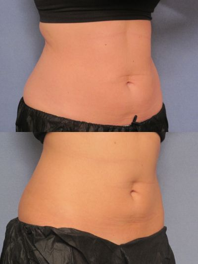 patient before and after CoolSculpting photos