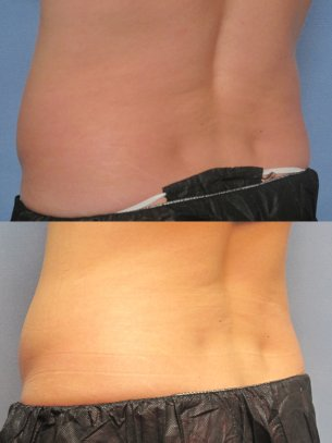 CoolSculpting photos patient before and after