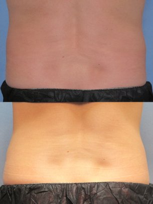 CoolSculpting images before and after
