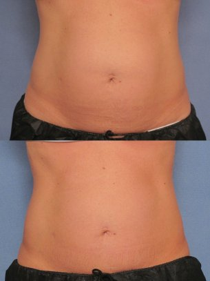 before and after CoolSculpting procedures - pics