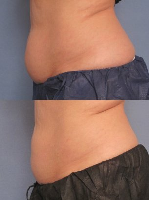 before and after CoolSculpting procedures - photos abdominal area