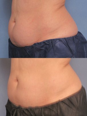 before and after CoolSculpting procedures - pics of patient