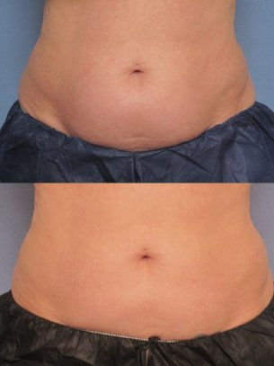 before and after CoolSculpting procedures - images of patient