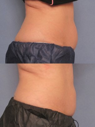 before and after CoolSculpting procedures - photos of patient