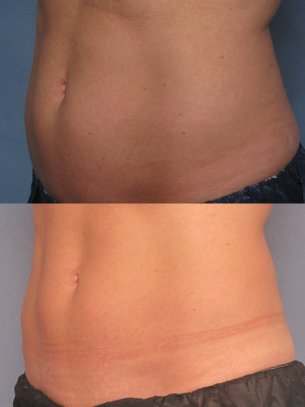 images abdominal area before and after CoolSculpting