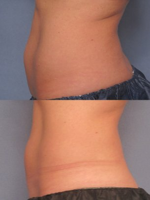 before and after CoolSculpting procedures - images abdominal area