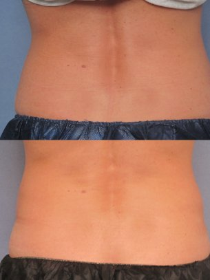 before and after CoolSculpting procedures - pics abdominal area