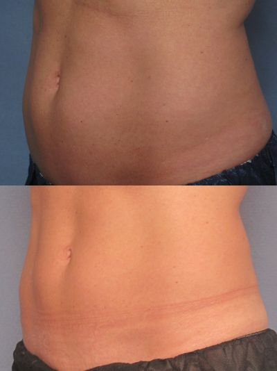 photos before and after CoolSculpting