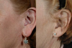 Ear Lobe Reduction - Before And After Treatment - Female (left side, oblique view)
