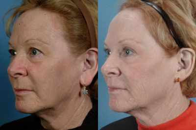 Gallery - Ears: Ear Lobe Reduction - Before and After Treatment Photo: Female (oblique view)