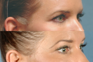 EYES - Ultherapy. Before and After Photos - Female patient (right side, oblique view)