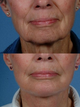 LOWER FACE - Jaw and necklift (facelift) with chin implant - Before and After Photos: Female (frontal view)