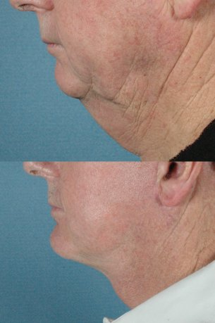 LOWER FACE - Jaw and necklift (facelift) with chin implant|Before and After Photos - Male (left side view)