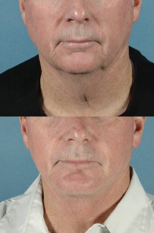 LOWER FACE - Jaw and necklift (facelift) with chin implant|Before and After Photos - Male (frontal view)