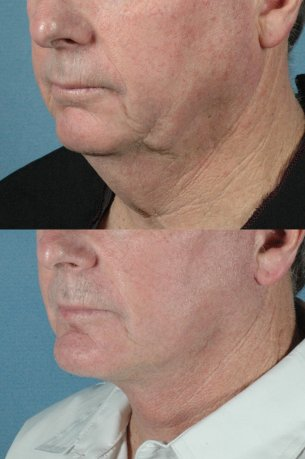 LOWER FACE - Jaw and necklift (facelift) with chin implant|Before and After Photos - Male (left side, oblique view)