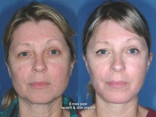 LOWER FACE - Facelift - Before and After 6 mounth - Photos: Female patient (frontal view)