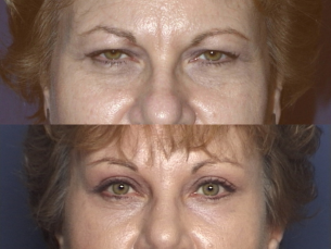FOREHEAD AND BROWS: Before and After Treatment Photos: Female (frontal view)