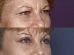 Before and After Photos: Forehead Brow Lift - Female (right side, oblique view)