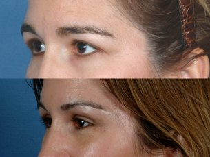 FOREHEAD AND BROWS: Before and After Treatment Photos: Woman patient (left side, oblique view)