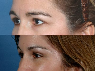 Before and After Photos: Forehead Lift - Female (left side, oblique view)